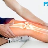 Know About Total Knee Replacement