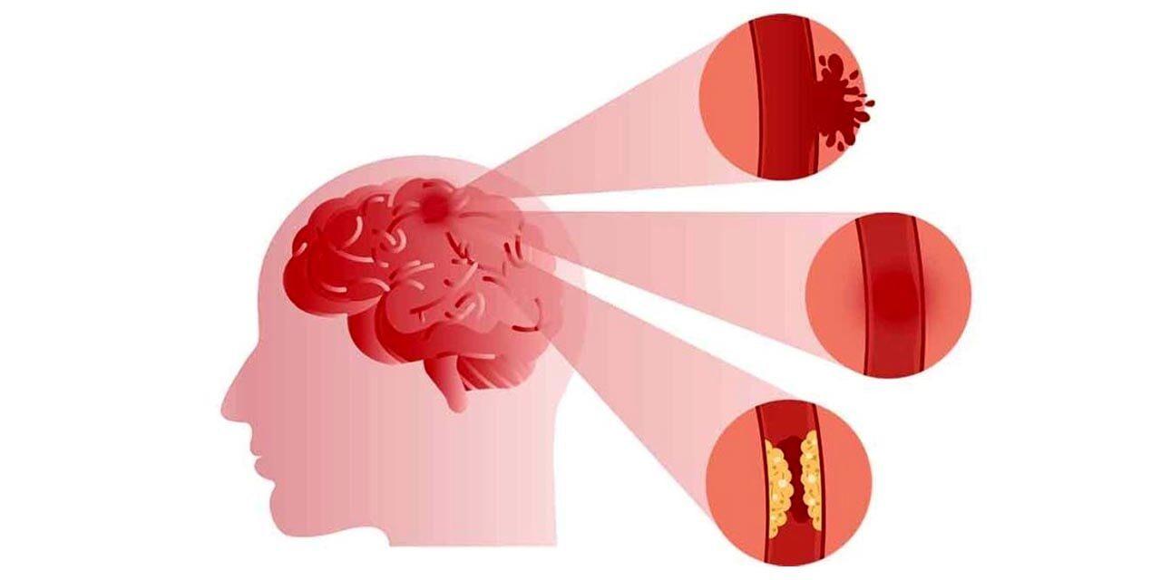 https://mewarhospitals.com/wp-content/uploads/2021/03/stroke-symptoms-causes-treatments-min-1280x640.jpg