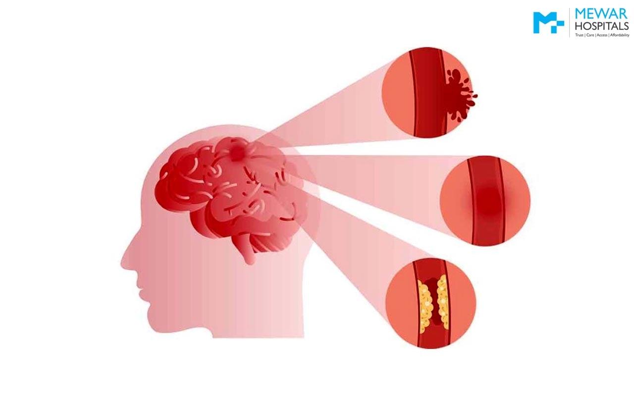 https://mewarhospitals.com/wp-content/uploads/2021/03/stroke-symptoms-causes-treatments-min.jpg