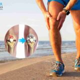 Do And Don't After Knee Replacement Surgery